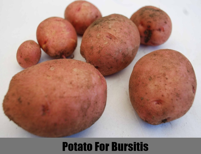Potato For Bursitis