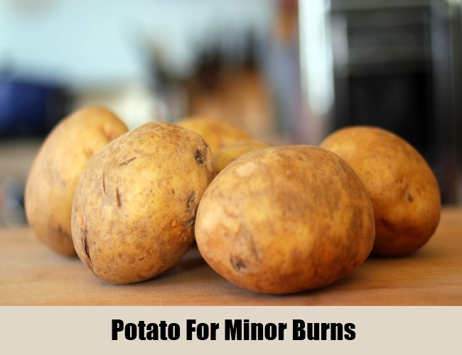 Potato For Minor Burns