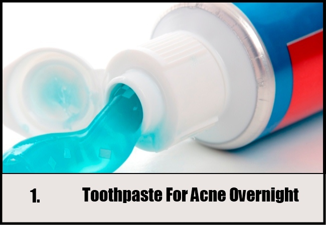 Toothpaste For Acne Overnight