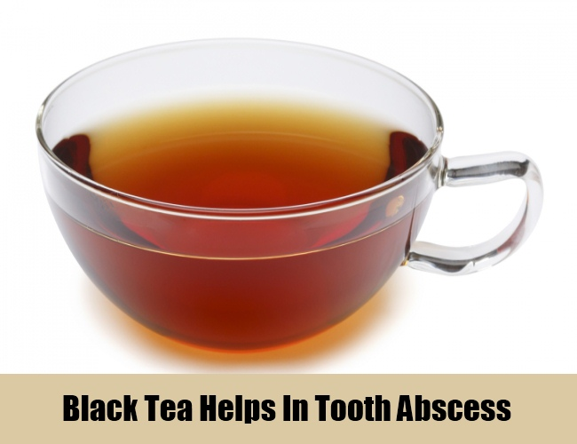 Black Tea Helps In Tooth Abscess