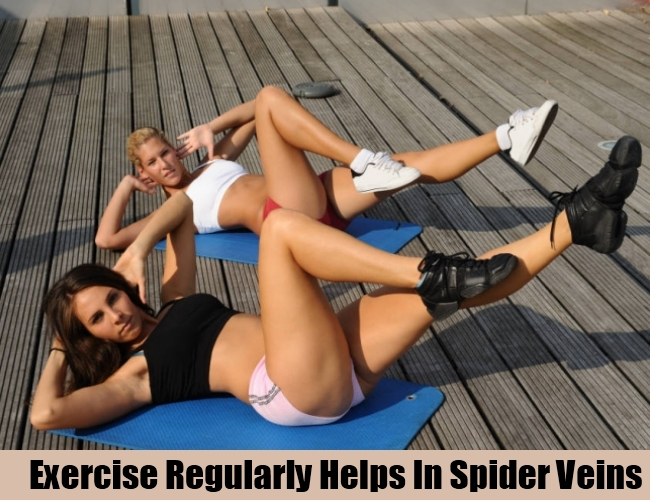 Exercise Regularly Helps In Spider Veins