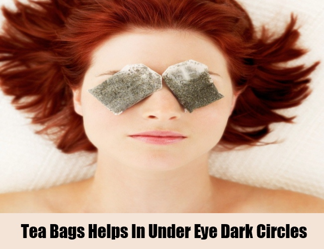 Tea Bags Helps In Under Eye Dark Circles