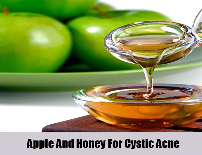 Apple And Honey For Cystic Acne