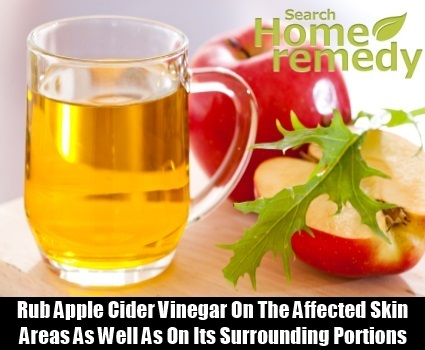 Apple Cider Vinegar6