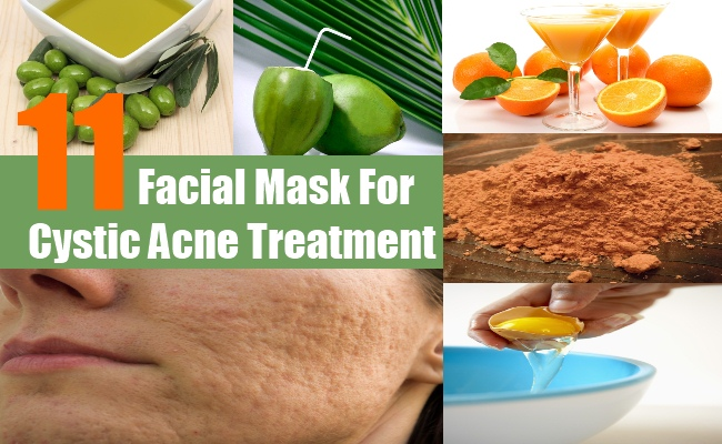 Facial Mask For Cystic Acne Treatment