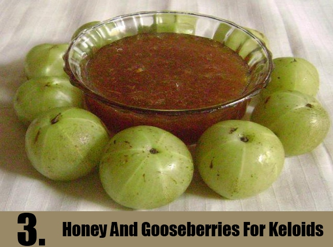Mix Of Honey And Gooseberries For Keloids