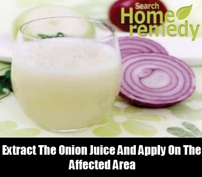 Onion Juice Cure