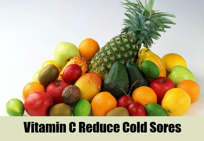 Vitamin C Reduce Cold Sores