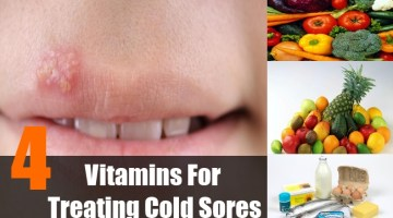 Vitamins For Treating Cold Sores