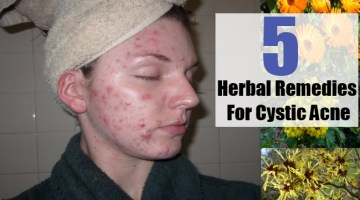 Herbal Remedies For Cystic Acne