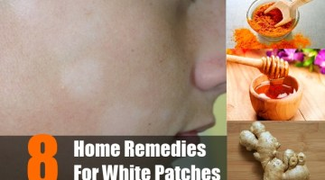 Home Remedies for White Patches
