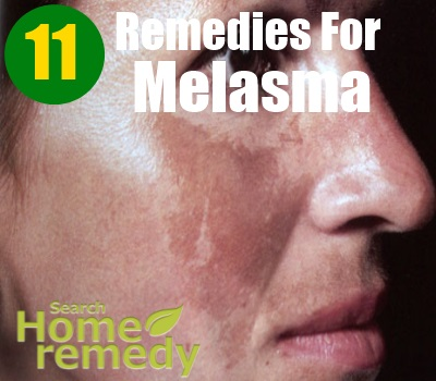 11 Best Home Remedies For Melasma