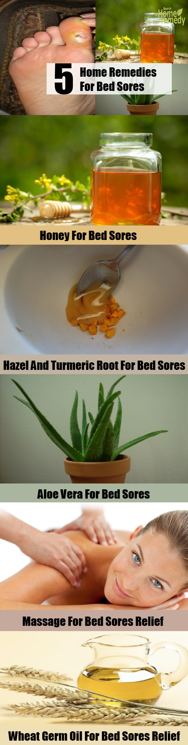 5 Top Home Remedies For Bed Sores