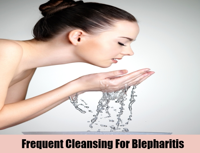 Frequent Cleansing For Blepharitis