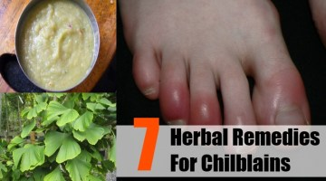 Herbal Remedies For Chilblains