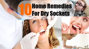 Home Remedies For Dry Sockets