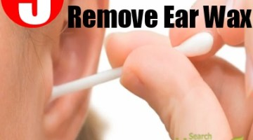 Remove Ear Wax