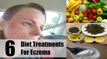 Diet Treatments For Eczema
