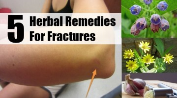 Herbal Remedies For Fractures