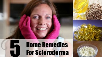 Home Remedies For Scleroderma