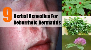 Herbal Remedies For Seborrheic Dermatitis