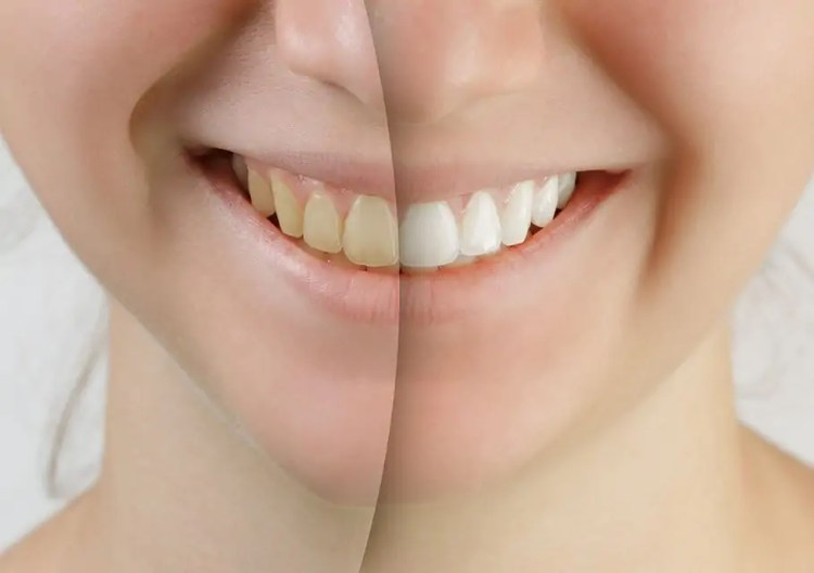 Cosmetic Treatment Whitening