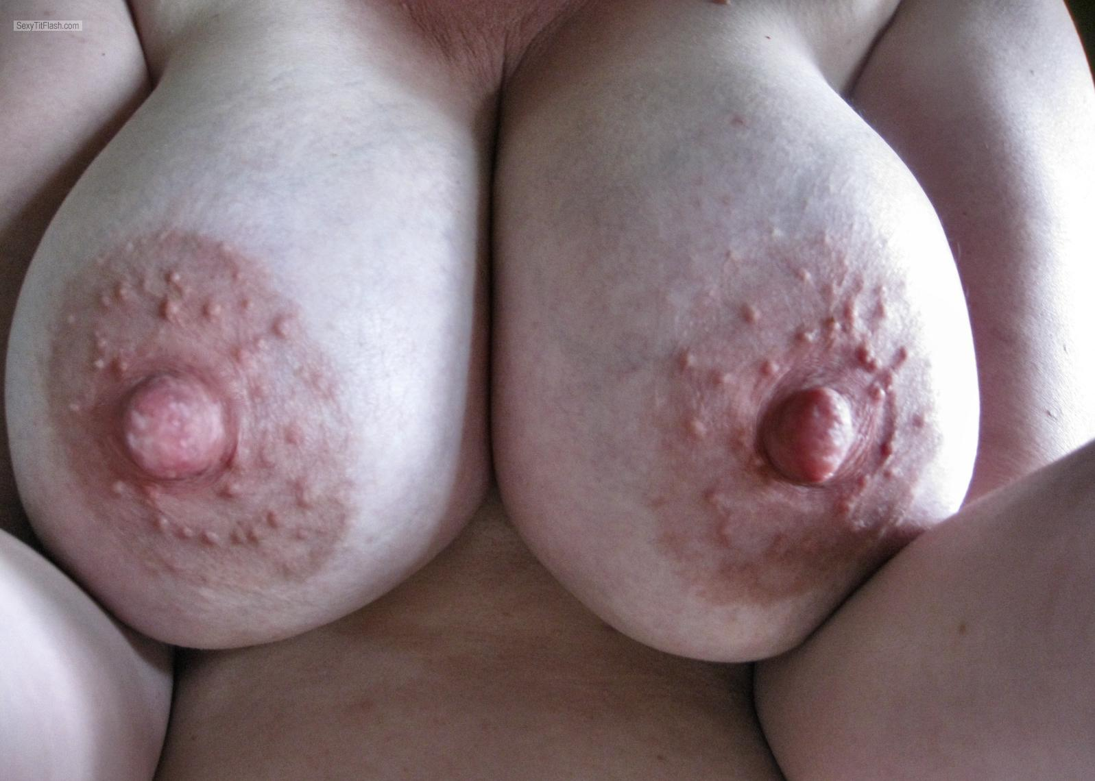 dark bumpy areola breast