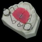 aparat-ortodontic-11