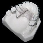aparat-ortodontic-3