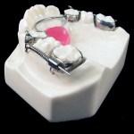 aparat-ortodontic-5