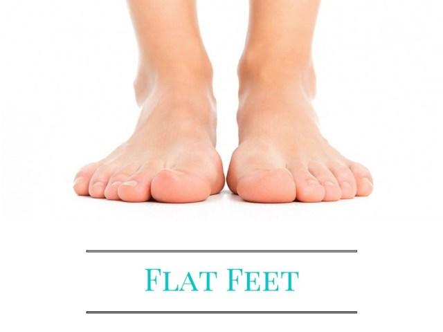 Best Flat Feet