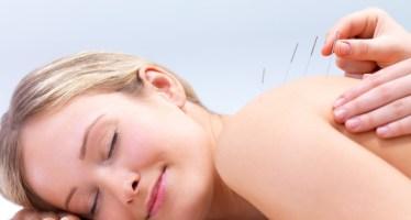 acupuntura3