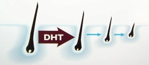 picture of how steroids & dht accelerate hair loss