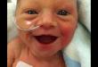 foto-de-una-beba-prematura-sonriente