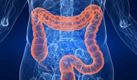colon detoxification