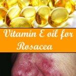 vitamin e oil for rosacea