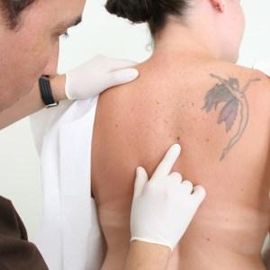 laser-mole-removal