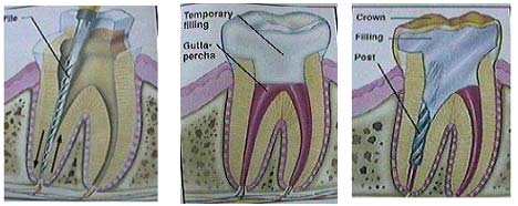 root-canal-theropy