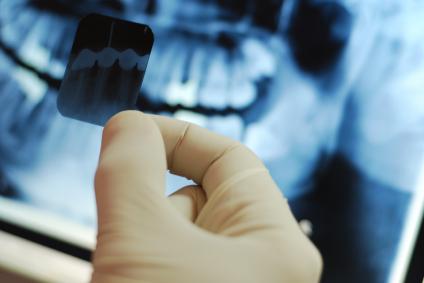dentistry-2-istock_000005923595xsmall