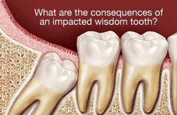 wisdom-teeth-350