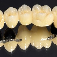 All you need to Know about Metal Ceramic Crown