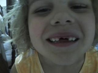 mer toothless