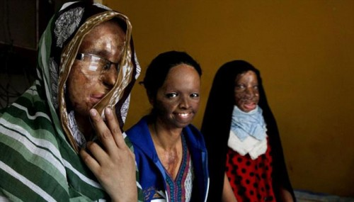 The Stories Of These 4 Brave Women Who Survived Acid Attacks Will Bring Tears To Your Eyes