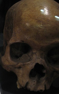 A skull of unknown man found 50 years ago with chains in basement of a house smugglers were known to frequent