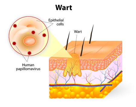 epithelial-cells