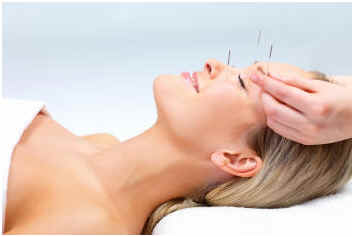 can-acupuncture-help-acne