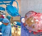 WTF!!! Le extirpan tumor de 60 kilos a una mujer