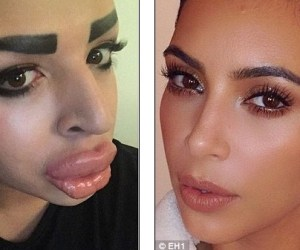 WTF!!?? Gasta 150 mil dólares para ser como Kim Kardashian