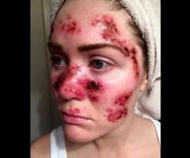 cancer piel1
