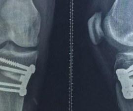 rodilla rivaldo